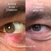2 Acute Chalazion IPL