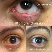 2 Chalazion IPL