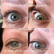 2 Eyelid Laxity IPL RF