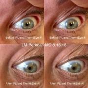 Eyelid Laxity IPL RF
