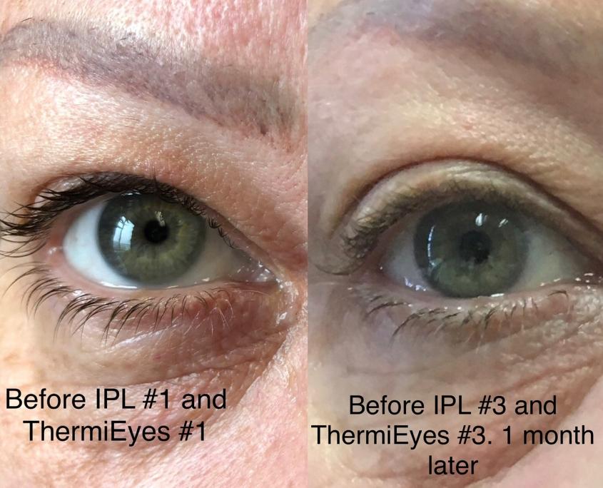 3 Eyelid Laxity IPL RF